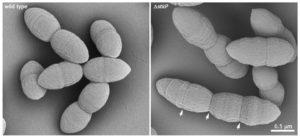 Elektronova mikroskopie